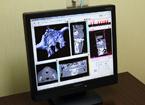 3D画像診断データ