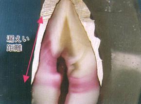 インクの入り込んだ歯の断面