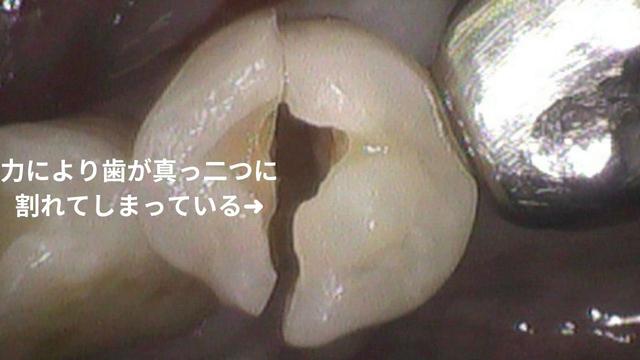 歯科治療成功の鍵は噛み合わせ|咬み合わせ専門歯科 吉本歯科医院