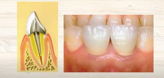歯の神経が生きているか死んでいるかの判断なら香川県高松市の吉本歯科医院