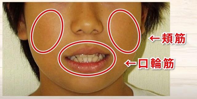 顔の筋肉の老化は噛み合わせ 香川県高松市の吉本歯科医院