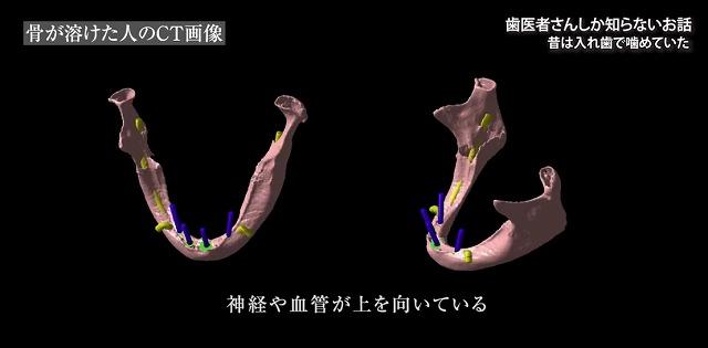 噛める入れ歯なら香川県高松市の噛み合わせ専門歯科 吉本歯科医院
