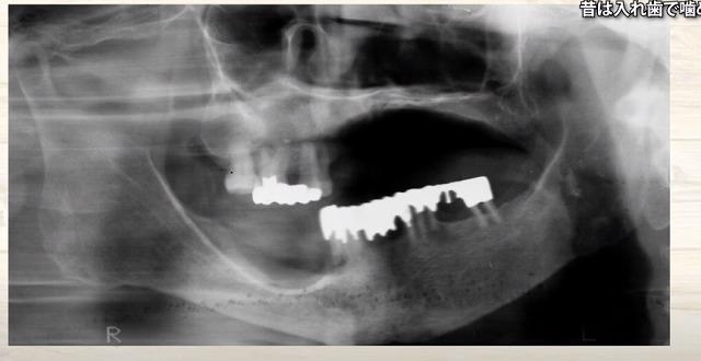 痛くなく噛める入れ歯|香川県高松市の噛み合わせ専門 吉本歯科医院