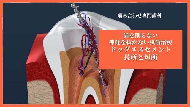歯を削らない歯の神経を取らない虫歯治療なら香川県高松市の吉本歯科医院