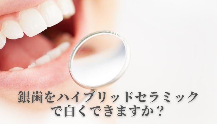 ginbawoshirokushitai.jpg