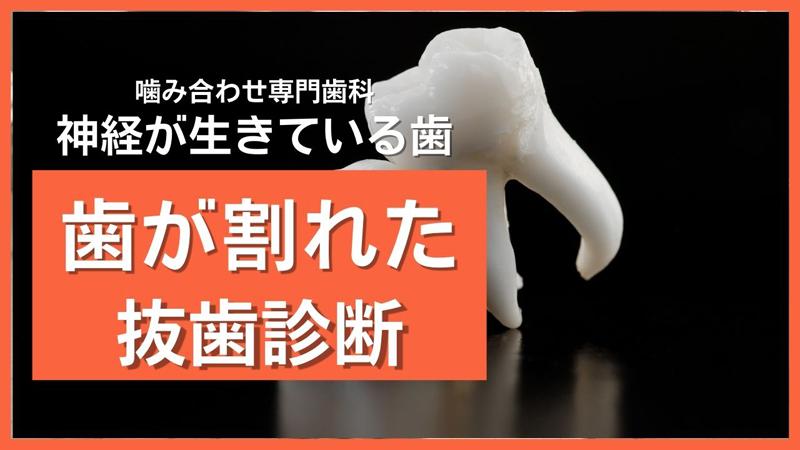hagawaretabasshishindan.jpg