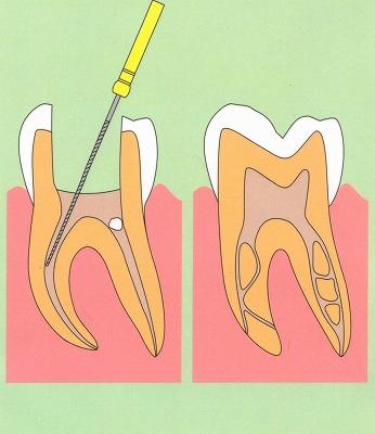 「歯の神経 site:http://www.8181118.com/」の画像検索結果