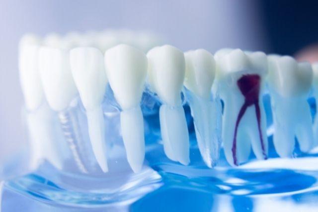 歯の神経を取った歯が痛み続ける原因|香川県高松市の歯の神経治療専門 吉本歯科医院