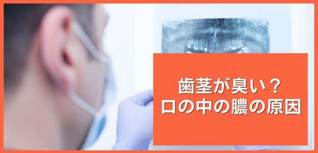 歯周病の膿の原因|香川県高松市の吉本歯科医院