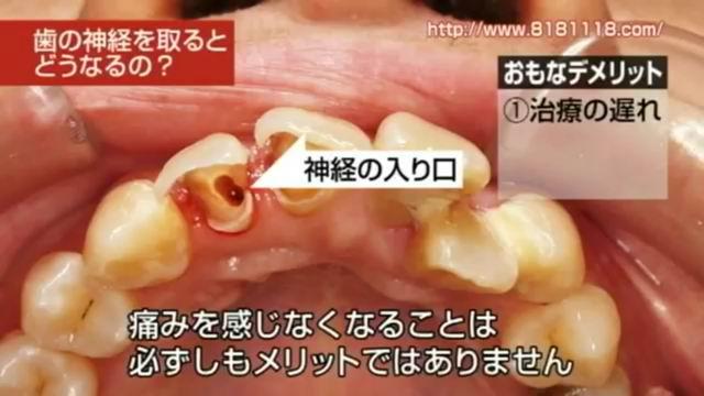 sashikae3.jpg