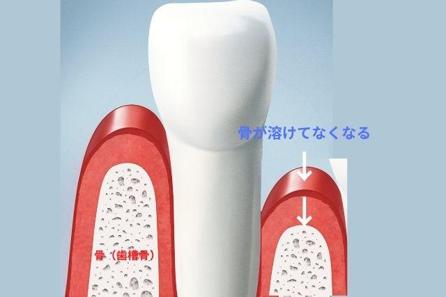 歯周病で骨が溶ける|香川県高松市の吉本歯科医院