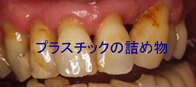 tsumemonokuroku.jpg