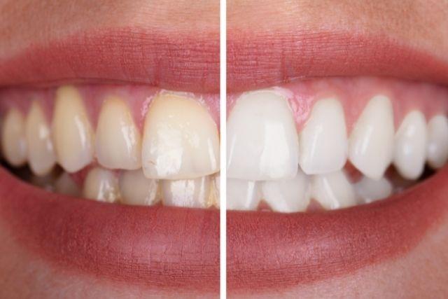歯を抜いた後の治療法|入れ歯かインプラントか?|噛み合わせ専門の吉本歯科医院