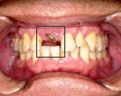 「前歯 site:http://www.8181118.com/」の画像検索結果