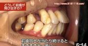 前歯が飛び出してきた、前歯が崩れてきた、歯並びが崩れてきた、噛み合わせが崩れてきたの動画を見る
